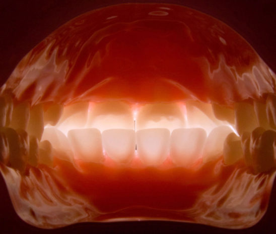 Why Dental Photography Is Essential For Your Practice?-Online Dentistry Courses